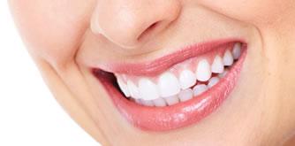 専用の薬剤を使用して歯を白くするホワイトニング
