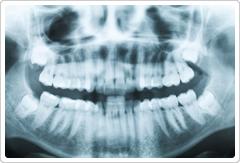 主訴の診査ご希望の方はお口全体の診査写真