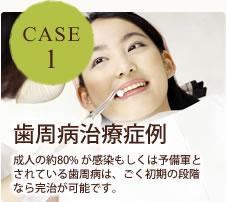 CASE1 歯周病治療症例