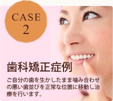 CASE2 歯科矯正症例