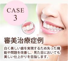 CASE3 審美治療症例