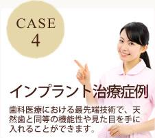 CASE4 インプラント治療症例