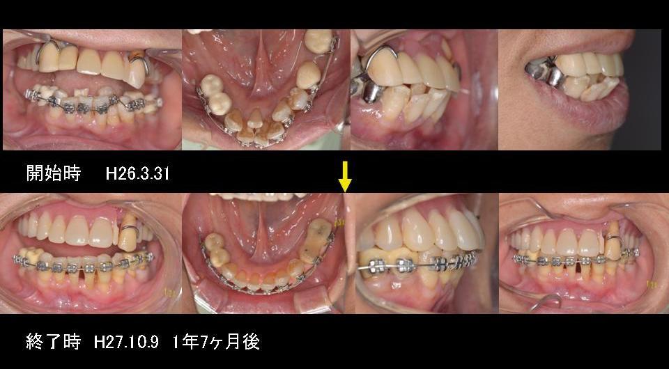 歯周病と矯正治療 ケース1